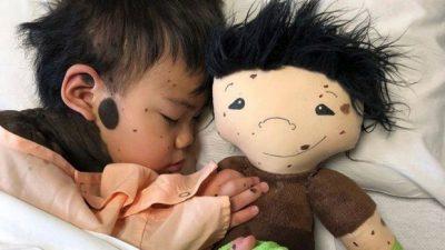 bambole-per-la-disabilita-infantile-doll-like-me-liniziativa-di-una-mamma-americana