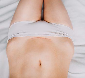 scar-pregnancy-quando-lembrione-si-impianta-sulla-cicatrice-di-un-precedente-cesareo