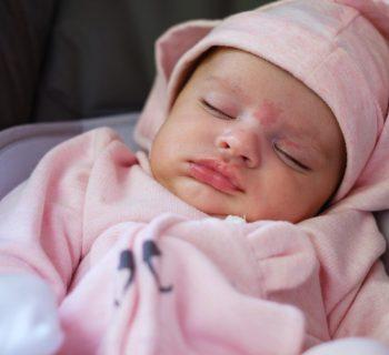 voglie pelle neonato