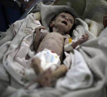 Sahar bimba morta fame Siria