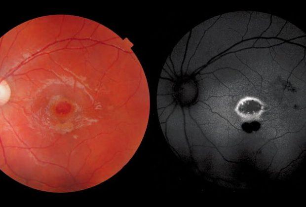 a-nove-anni-perde-la vista-ad-un-occhio-a-causa-di-un-puntatore-laser