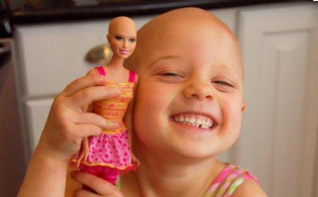 una-barbie-calva-per-aiutare-le-bambine-ad-affrontare-la-chemioterapia