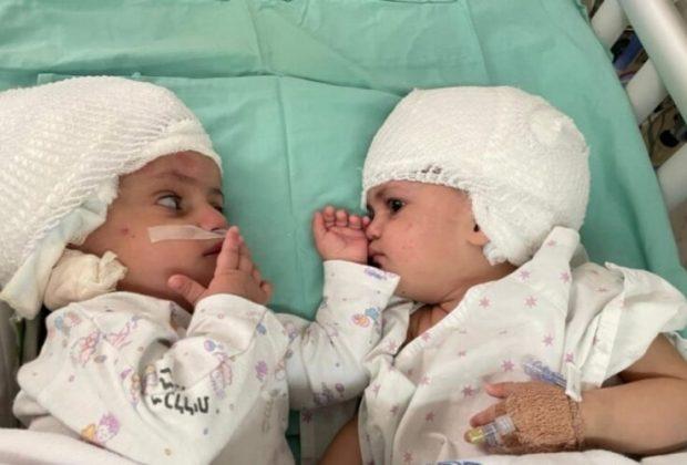 nascono-con-la-testa-attaccata-finalmente-le-due-gemelline-siamesi-possono-guardarsi-negli-occhi