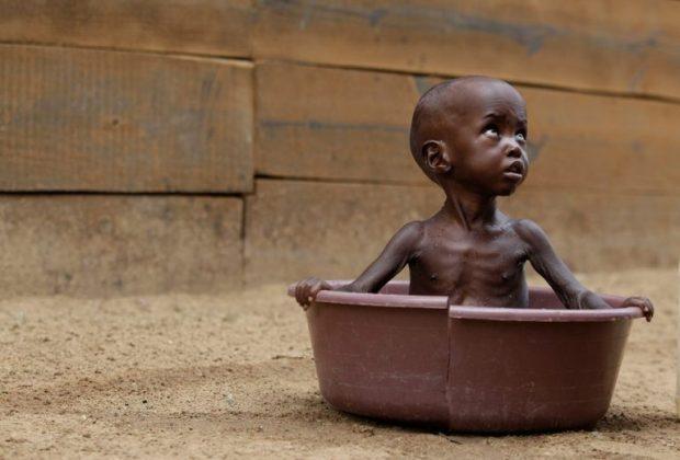 kenya bambini malnutriti siccità