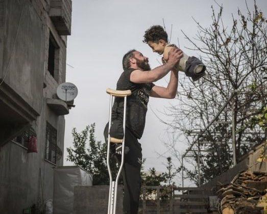 padre-e-figlio-senza-arti-sorridono-nella-foto-simbolo-del-dramma-siriano