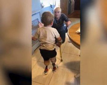primi-passi-con-la-protesi-a-4-anni